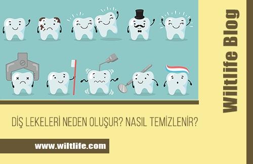 Diş Lekelerinin Oluşumu ve Temizliği